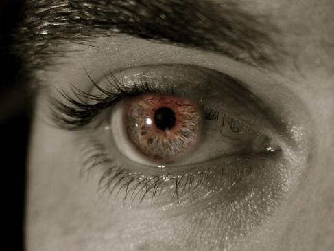 Czerwone oko - przyczyny