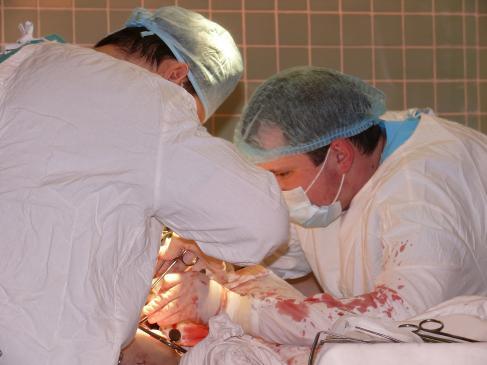 Na czym polega operacja przegrody nosowej?