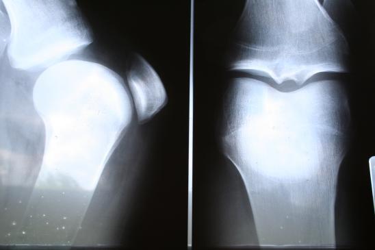 Reumatoidalne zapalenie stawów - przyczyny i objawy