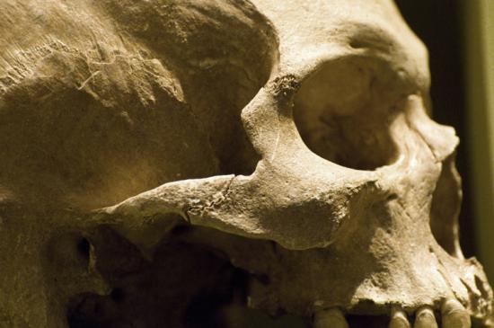 Zapalenie kości - objawy i leczenie