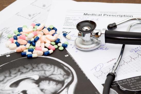 Móżdżek - jego funkcje i znaczenie dla człowieka, choroby móżdżku, objawy