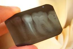 Piaskowanie zębów - na czym polega?