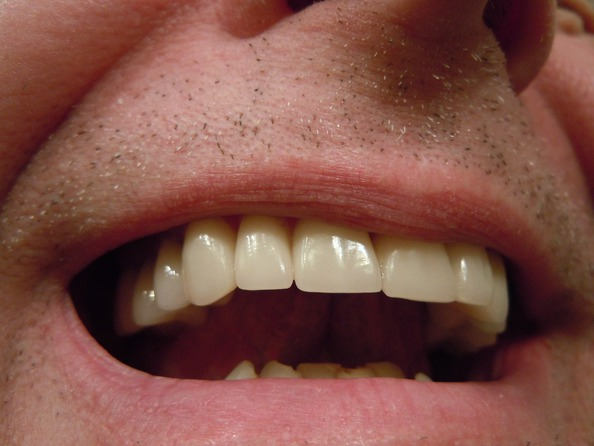 Jak leczyć zgrzytanie zębami?