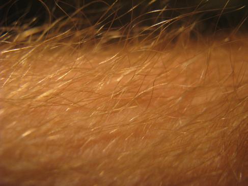 Łojotokowe zapalenie skóry - przyczyny, objawy