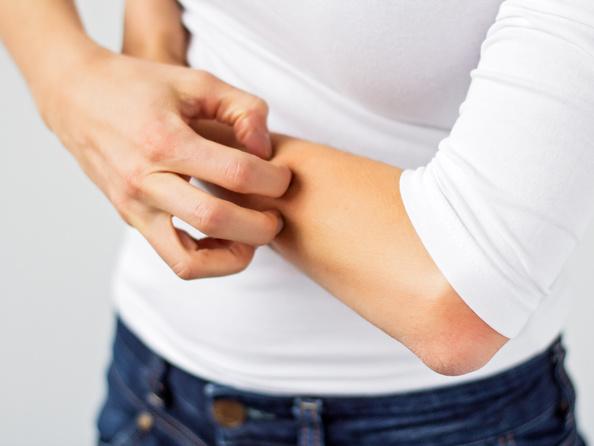 Pokrzywka - przyczyny, objawy, leczenie