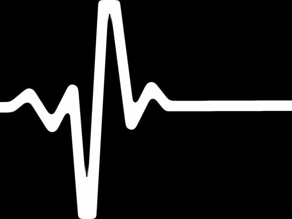 Dusznica bolesna - co to jest, przyczyny, objawy