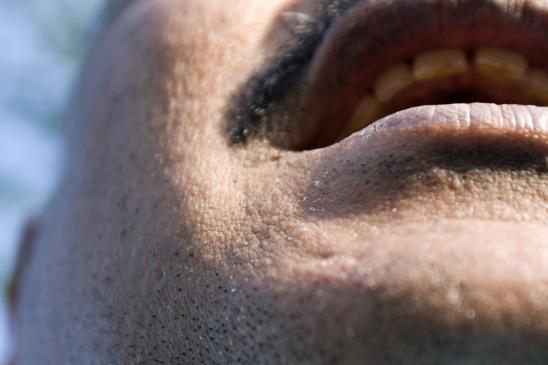 Wyprysk kontaktowy - co to jest, objawy, leczenie