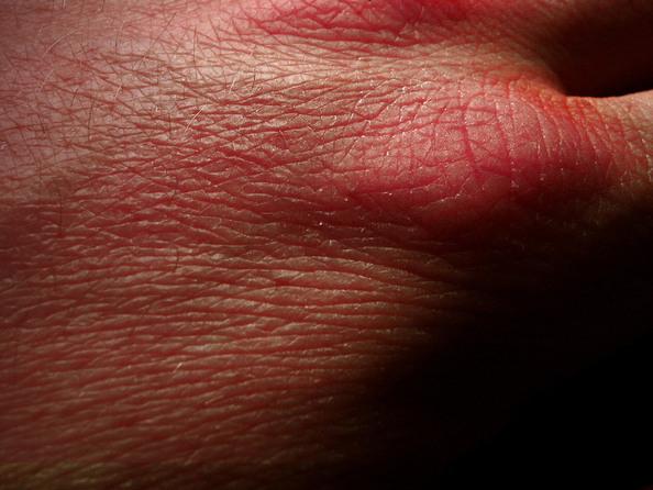 Liszaj płaski - przyczyny, objawy, leczenie