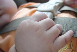 Choroba lokomocyjna u dzieci - objawy, kiedy się ujawnia, leczenie