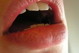 Zapalenie czerwieni wargowej - objawy, przyczyny
