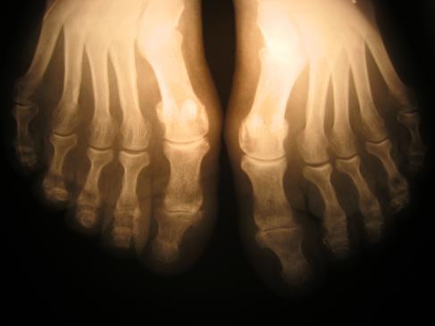 Osteoporoza - objawy