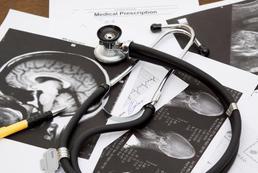Udar niedokrwienny mózgu - przyczyny, objawy