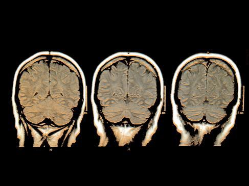 Ośrodkowy układ nerwowy – krwiaki - rodzaje, objawy