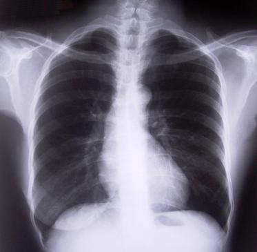 Badanie spirometryczne - na czym polega, wyniki